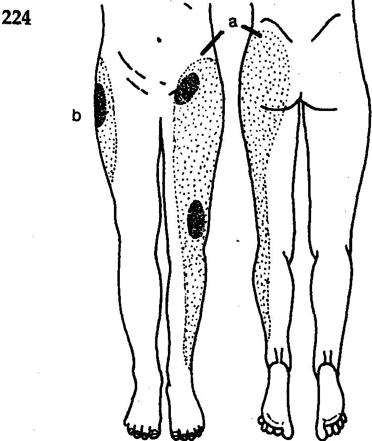 Болит Нога В Районе Тазобедренного Сустава