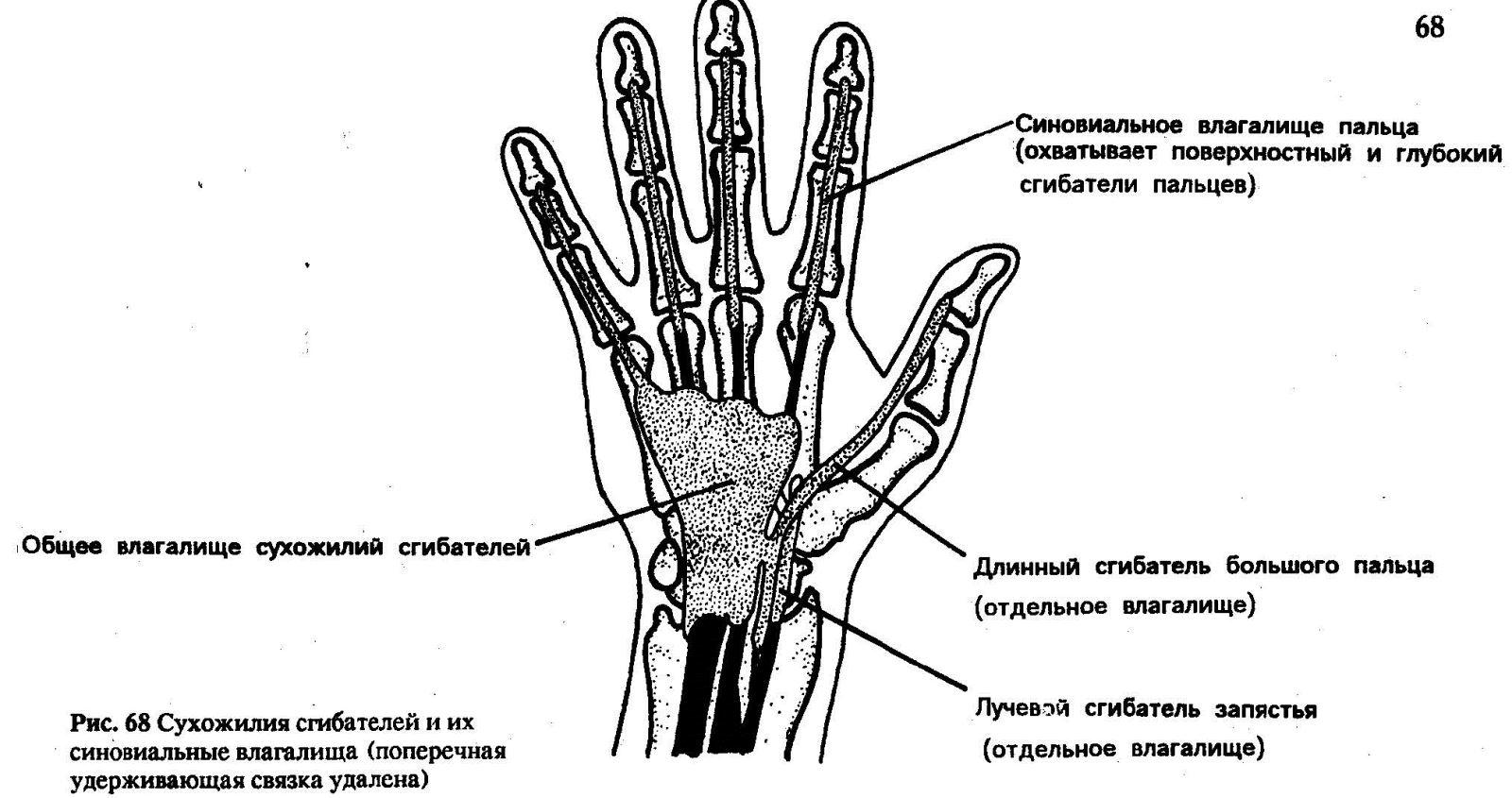 Луковая Шелуха Лечение При Ревматоидном Артрите