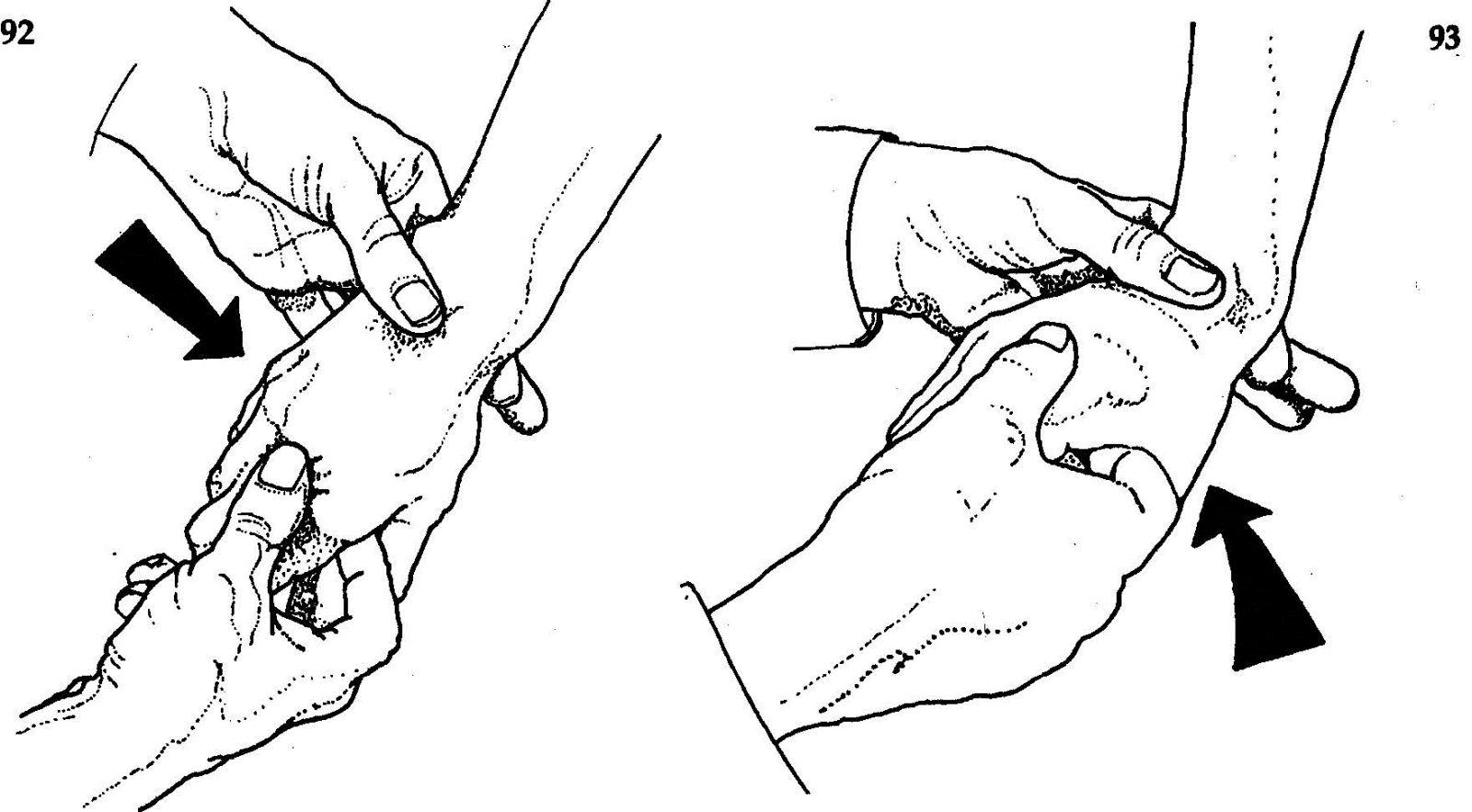 Плечевой Артрит Симптомы И Лечение