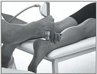Radial Shock Waves For The Treatment To The Lower Limbs